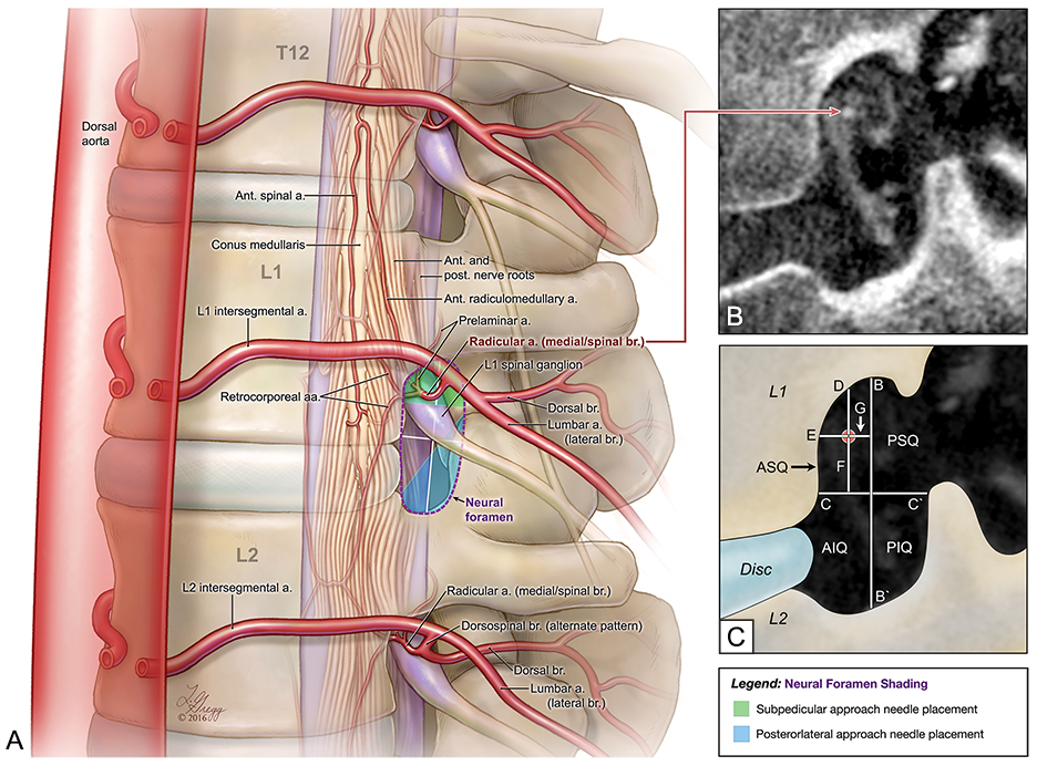 Spinal Vascular Anatomy Research | Visualization Core Lab in ...