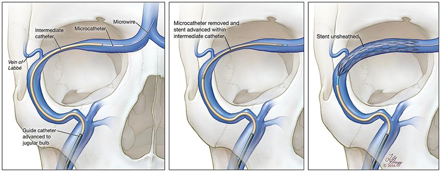 Lydia Gregg's illustration of the venou sinus stent deployment